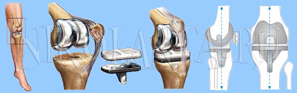 протезирование коленного сустава в г днепропетровска