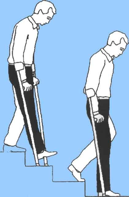 замена тазобедренного сустава ходьба